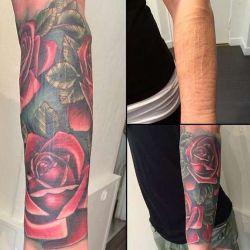 Татуировки на шармах. Как вернуть былую красоту